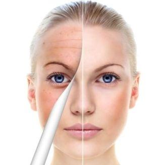 Resultado de imagen de foto piel envejecida